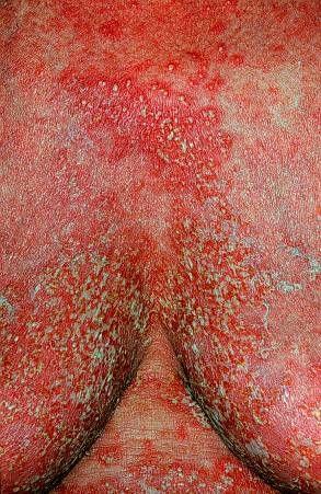 artrita reumatoida tratament homeopat osteoporoza simptome