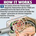 Noul dispozitiv care te scapa de migrene