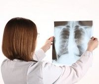 3 simptome care indica prezenta tuberculozei