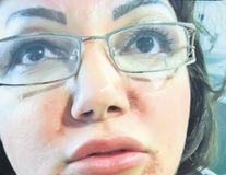 Artista Ozana Barabancea, desfigurată de injecţiile cu acid hialuronic