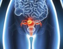 Un nou test medical depistează tratamentul corect pentru cancerul ovarian