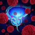 Studiu: Cancerul de prostată ocupă, în continuare, un loc fruntaş în România