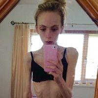 Apelul disperat al unei mame care lupta ca sa-si salveze fata bolnava de anorexie