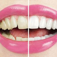 Ţigările afectează dinţii şi gingiile. 5 efecte nocive