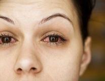 De ce se înroșesc ochii: cauze şi tratament