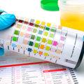 Ce spune aspectul urinei despre sănătatea ta