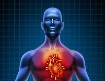 Ce legătură există între colesterol și inflamații?