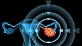 Simptome ale cancerului ovarian pe care multe femei le ignoră