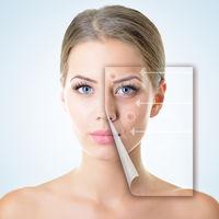 Cum să scapi de cicatricile provocate de acnee