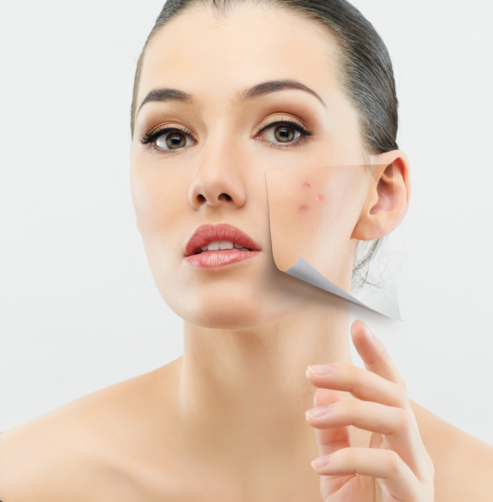 Frumusetea ta. 6 alimente care declanseaza aparitia acneei