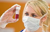 Afla totul despre infectia cu virusul HIV