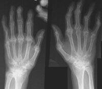 Femeile resimt mai puternic artrita reumatoida