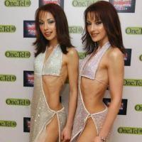 Anorexia, vedeta printre vedete