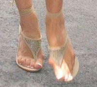 Pantofii cu toc i-au distrus picioarele Victoriei Beckham