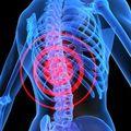 Care sunt cele mai frecvente afectiuni ale coloanei vertebrale?