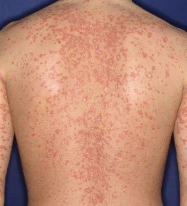 cauze dermatita atopica tratament