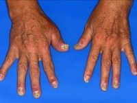 tratarea artrozei metode eficiente dureri articulare pe brațe în timpul hrănirii