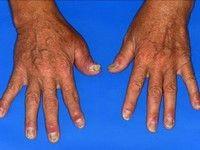 Artrita psoriazica apare la degetele mainilor