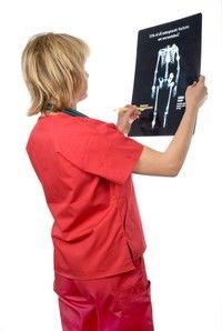 Recenzii ale tratamentului osteoporozei la șold culturism pentru dureri în articulațiile umerilor