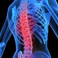 Aparate impotriva durerilor de spate pentru varstnicii cu venituri reduse