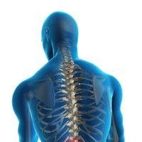 Nou: un tratament personalizat al artrozei