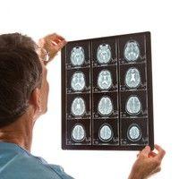 Principalii factori de risc asociati cu atacurile cerebrale