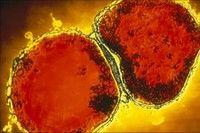 Genele care ne fac mai vulnerabili la meningita