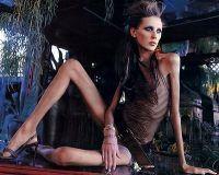 Anorexia, boala care ucide vedetele
