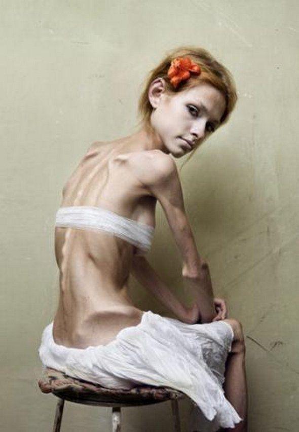 cronologie de pierdere în greutate anorexică