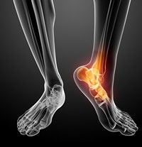 Injecții pentru tratamentul artrozei gleznei