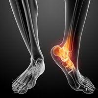 Terapia Orthokine combate artroza gleznei