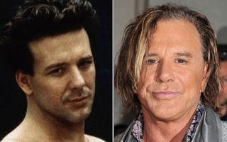 Vedete Hollywood: 10 bărbaţi distruşi de operaţii estetice
