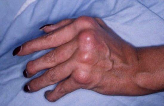regim alimentar dermatita atopica sapun natural