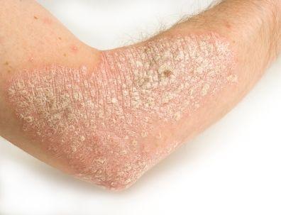 boli de piele psoriazis mkurnaloba perekisit