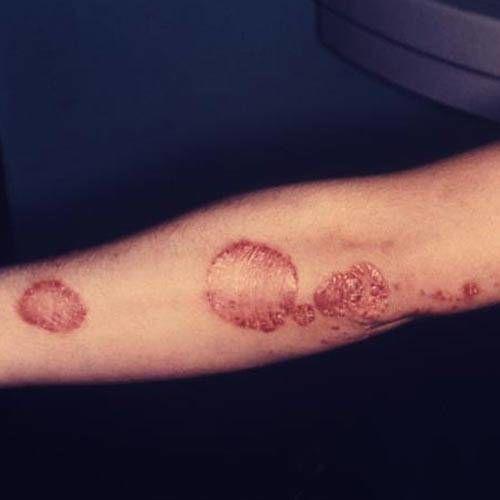 crema maini dermalogica eczema