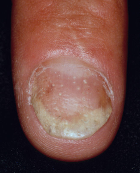 pitiriazis rozat gibert tratament hemoroizi