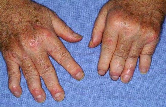 eczema pe spates