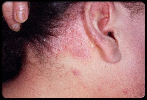 dermatita de contact bebe