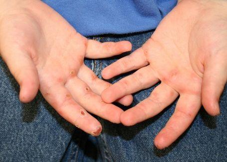 tratament homeopat dermatita atopica bebelusi