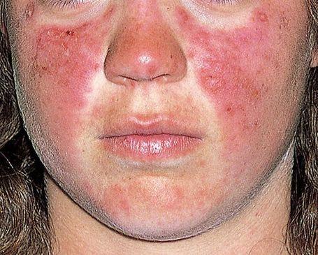 tratament dermatita de contact alergica al amor