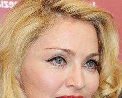 Faţa Madonnei, deformată de operaţiile estetice