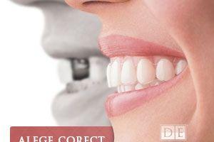 35% dintre români plătesc de două ori tratamentele dentare
