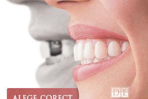 Paralizia partiala, un efect al esecului implantului dentar. Alege corect din prima!
