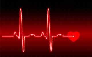 1 din 4 adulţi suferă de fibrilaţie atrială