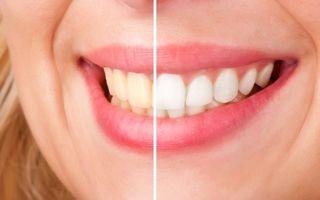 5 secrete despre albirea dentară. Când trebuie făcută?