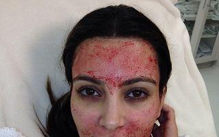 Kim Kardashian, cu sânge pe față