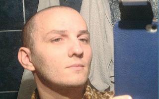 România mondenă: 6 bărbaţi disperaţi care şi-au făcut implant de păr
