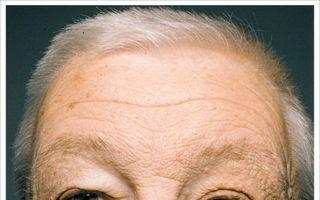 Dovada că soarele accelerează îmbătrânirea prematură a pielii