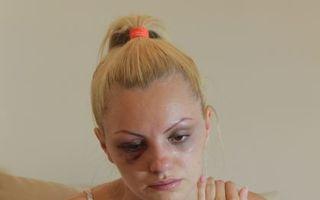 România mondenă: 13 vedete bătute de iubiţii lor. Află care sunt ghinionistele!