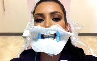 Hollywood: 7 vedete care s-au pozat la dentist. Imagini haioase!